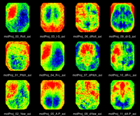 FMRI - Brain Mapping Unit